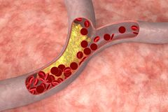 Cholesterol in artery. Cholesterol plaque in artery. Medical concept Royalty Free Illustration