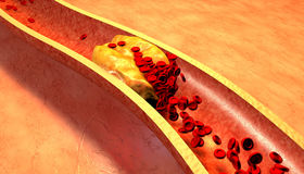 Cholesterol blocked artery, medical concept Stock Image