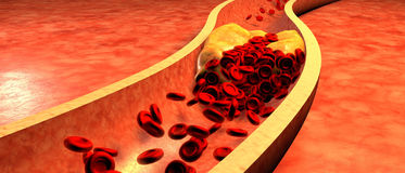 Cholesterol blocked artery, medical concept Royalty Free Stock Photography