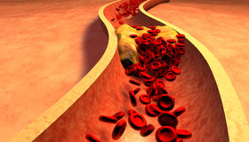 Cholesterol blocked artery, medical concept Royalty Free Stock Photo