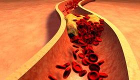 Cholesterol blocked artery, medical concept Royalty Free Stock Photo