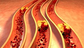 Cholesterol blocked artery, medical concept Royalty Free Stock Images