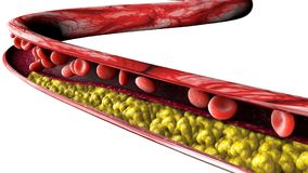 Cholesterol formation, fat. 3d section of an artery, vein and red blood cells, heart. Cholesterol formation, fat. 3d section of an artery, vein and red blood Royalty Free Stock Images
