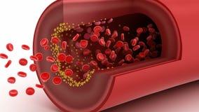 Cholesterol plakieta w naczyniu krwionośnym royalty ilustracja