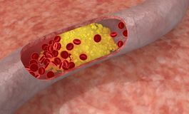 Cholesterol plaque in artery. Medical concept stock illustration