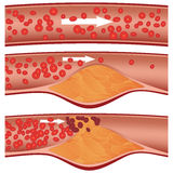 Cholesterol plaque in artery Royalty Free Stock Images