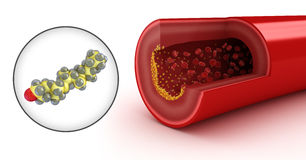 Cholesterol plaque in artery and cholesterol Royalty Free Stock Photography