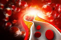 Cholesterol plaque in artery Stock Image