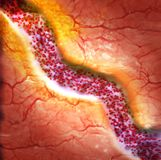 Cholesterol plaque in blood vessel. 3d rendering Royalty Free Stock Photo