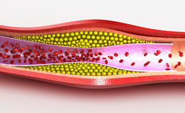 Cholesterol plaque in blood vessel. Illustration Royalty Free Stock Image