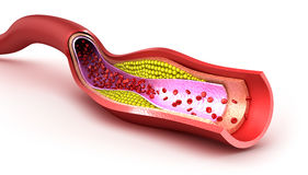 Cholesterol plaque in blood vessel. Illustration Royalty Free Stock Photos