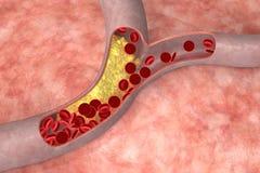 Cholesterol in slagader royalty-vrije illustratie