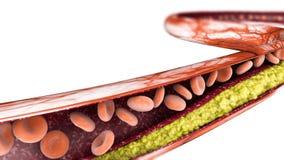 Cholesterolvorming, vet 3d sectie een slagader, een ader en rode bloedcellen, hart royalty-vrije stock fotografie