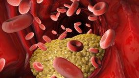 Cholesterolvorming, vet, slagader, ader Rode bloedcellen, bloedstroom Het versmallen van een ader voor vette vorming vector illustratie