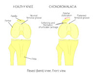 Chondromalacia-Kniescheibe Flach gedrückte Schenkelnut Lizenzfreie Stockbilder