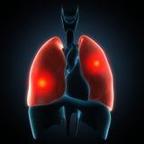 Choroby ilustracja ludzcy płuca ilustracji