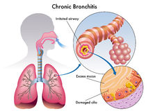 Chronic bronchitis. Medical illustration of the effects of the chronic bronchitis Stock Photography