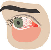 Chronic conjunctivitis eye with a red iris Stock Images