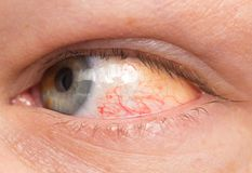 Chronic conjunctivitis eye with a red iris and pus close-up. royalty free stock images