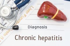 Chronic hepatitis diagnosis. Anatomical 3D model of human liver is near stethoscope, results of laboratory tests of liver function royalty free stock images