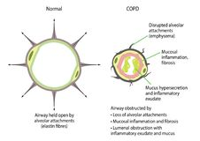 Chronic obstructive pulmonary disease. Comparison of a normal airway and one with chronic obstructive pulmonary disease COPD vector illustration