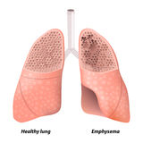 Chronic obstructive pulmonary disease Royalty Free Stock Photo