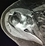 Shoulder burcitis glenohumeral osteoarthrosis. Chronic pain in the shoulder one of the cause of MRI exam , which can reveal different pathology , as glenohumeral stock image
