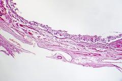 Chronische bronchitis onder microscoop stock fotografie