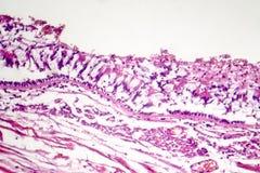 Chronische bronchitis onder microscoop royalty-vrije stock fotografie