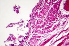 Chronische bronchitis onder microscoop stock foto's