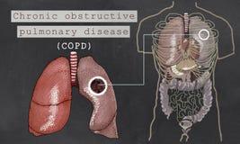 Chronische Obstructieve Longziekte met Longen Royalty-vrije Stock Afbeeldingen