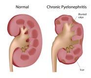 Chronische pyelonephritis van de nier Stock Fotografie