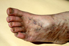Chronische venöse Unzulänglichkeit thrombosis fuß Erweiterung von Adern auf dem Bein Lizenzfreies Stockfoto
