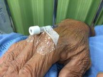 Ciérrese encima de las agujas para la inyección a disposición de la mentira paciente Fotos de archivo