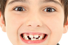 Ciérrese encima de los dientes que falta foto de archivo libre de regalías