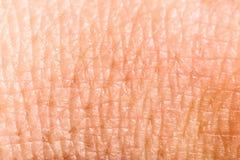 Ciérrese encima de piel humana. Epidermis macra Foto de archivo