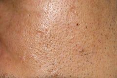 Ciérrese encima del acné, agujeros del acné soldados con autógena en cara Imagen de archivo libre de regalías