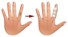 Cięcie na ręce z bandażem ilustracji