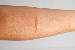Cicatrice de bras Photographie stock libre de droits