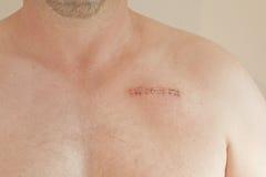 Cicatrice dello stimolatore cardiaco fotografia stock libera da diritti