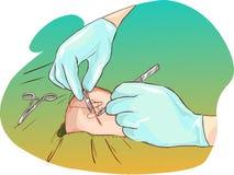 Cicatrice su un'illustrazione del gomito Immagini Stock