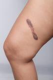 Cicatrice sur la peau humaine photographie stock libre de droits