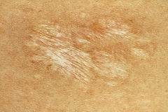 Cicatrice tedesca del morso di cane di Sheppard Immagini Stock