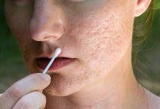 Cicatrices de la espinilla y del acné Fotografía de archivo libre de regalías