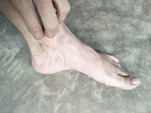 Cicatrices de morsures de moustique Images stock