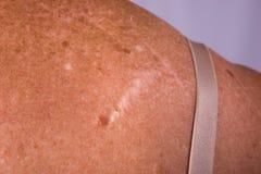 Cicatrices en la parte posterior de una señora del cáncer de piel foto de archivo
