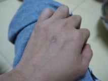 Cicatrices a mano foto de archivo