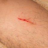 cicatrici sulla gamba Fotografia Stock Libera da Diritti