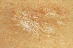 Cicatriz alemão da mordida de cão de Sheppard Imagens de Stock