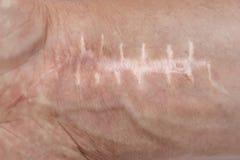 Cicatriz com os pontos no pulso após a cirurgia Fratura dos ossos das mãos imagens de stock
